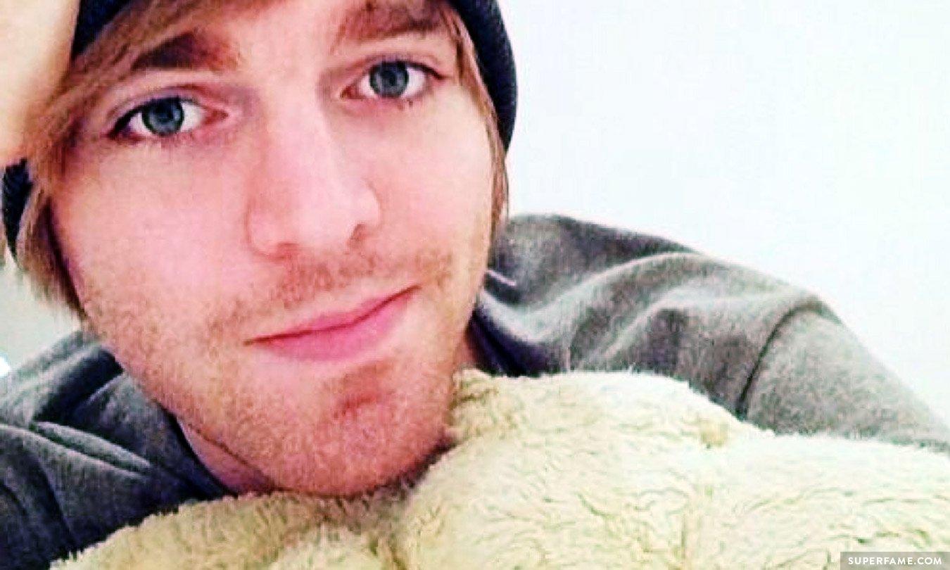 Shane Dawson's face