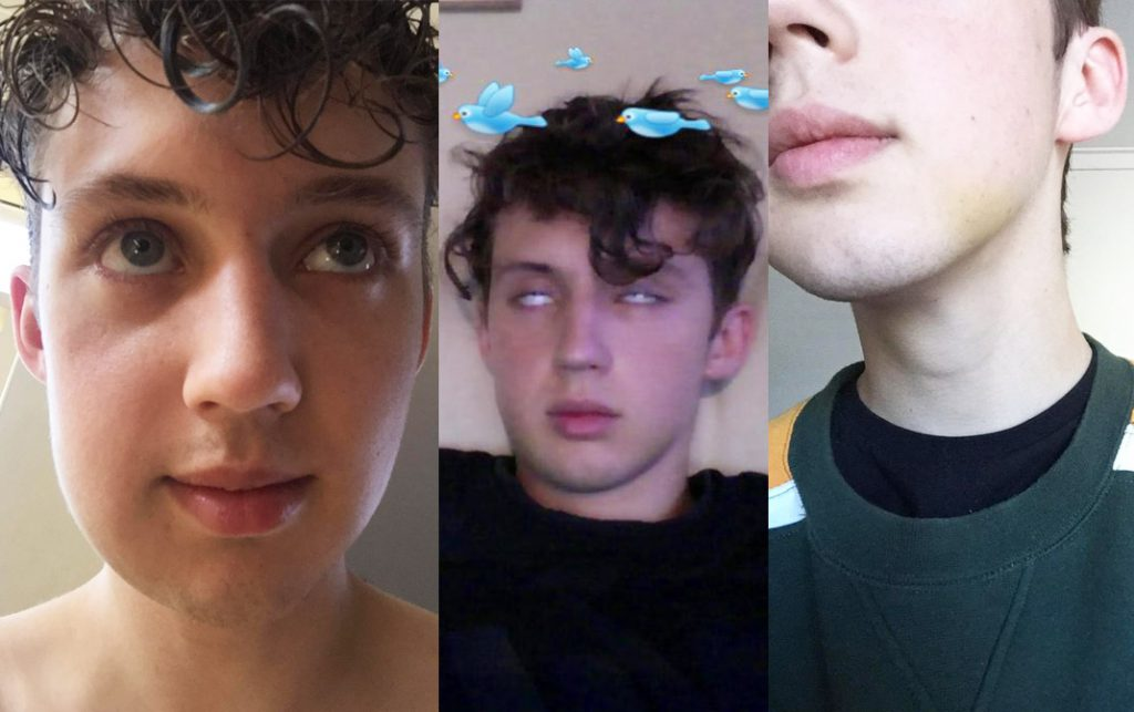Troye Sivan's stages of swelling.