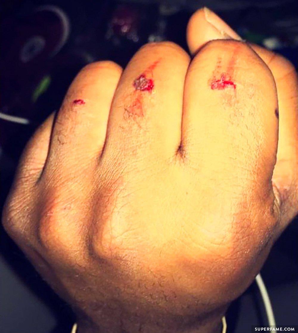 Willie Jones' fists.