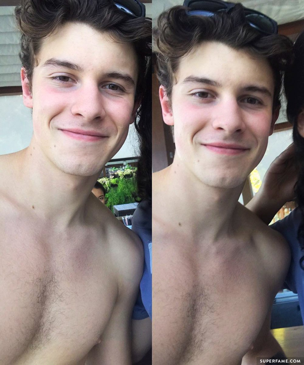 Shawn's chest hair.